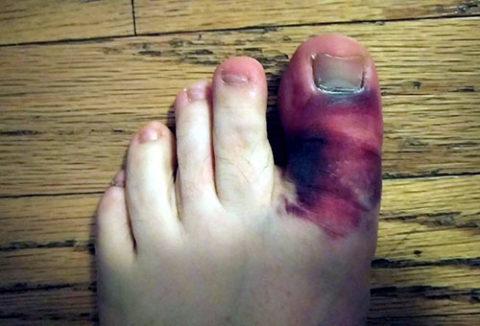 Фото: сроки восстановления после перелома пальца на ноге