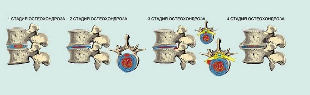 остеохондроз поясничного отдела позвоночника стадии и степени