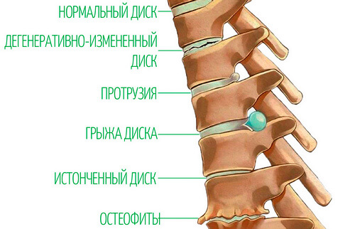 степени шейного остеохондроза