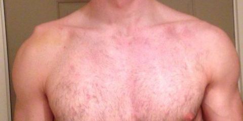 Фото: внешние симптоматические проявления сломанной ключицы в области плеча