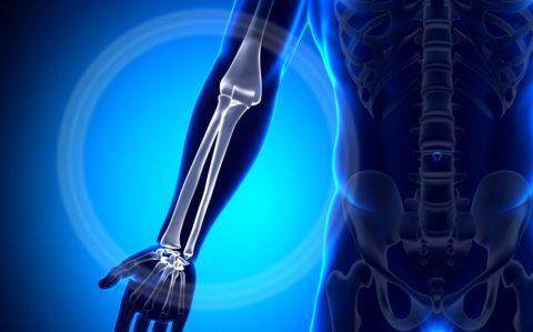Фото:анатомические особенности повреждения лучевой кости