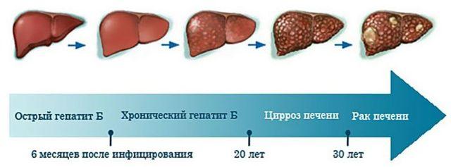 Признаки гепатита B