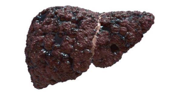 Герпес внутренних органов симптомы Поражение печени