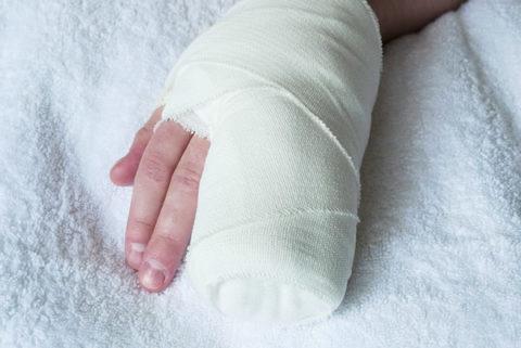 Гипсовая повязка для фиксации поврежденных пальцев на руке для правильного сращения кости