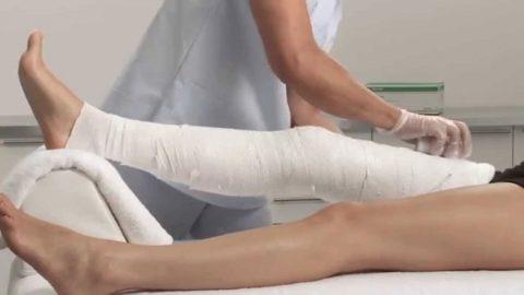 Гипсовая повязка на конечность при переломе бедра