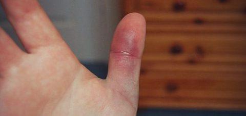 Главные признаки повреждения целостной структуры кости пальца руки
