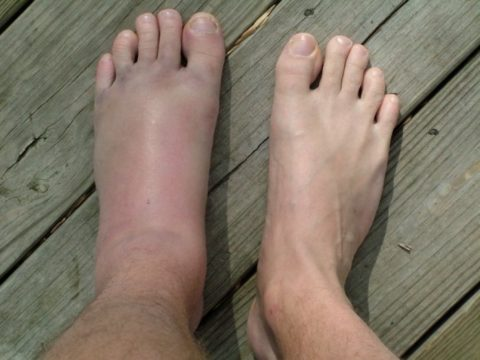 Главные симптоматические признаки повреждений нижней конечности