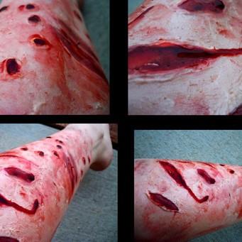 Глубокие раны от укуса собаки