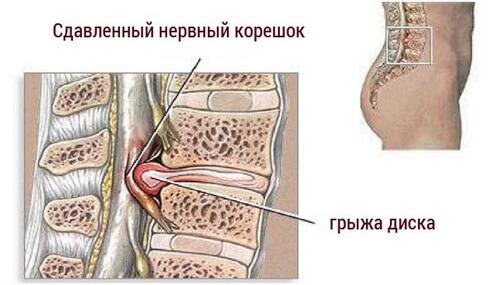 боли в пояснице в положении лежа на спине осложнения