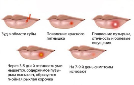 Герпес при беременности 3 триместр губы