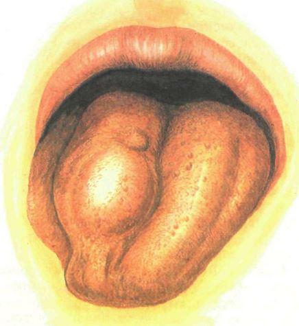 Что такое третичный сифилис Гуммы