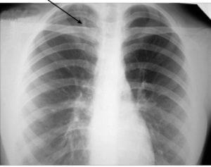 Характерно для туберкулеза