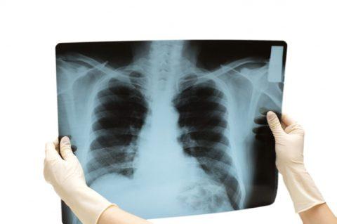 Характерные изменения легких межуточных пневмониях – неоднородная инфильтрация и/или затемнения