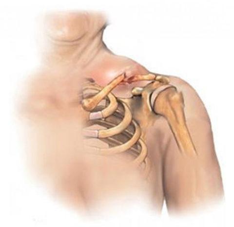 Характерные особенности травмированной ключицы при ударах, падениях или ДТП