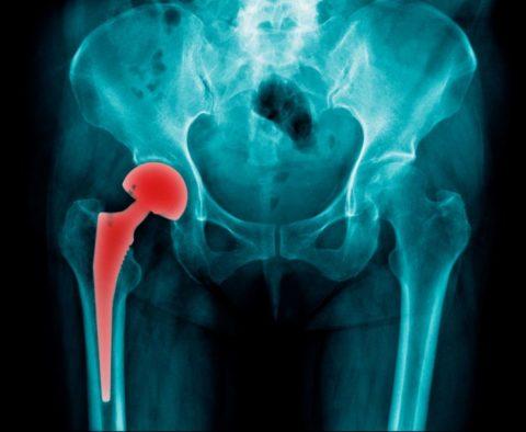 Хирургические способы борьбы с повреждением шейки бедра в пожилом возрасте