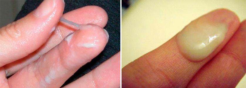 Какими бывают выделения при хламидиозе: до и после лечения