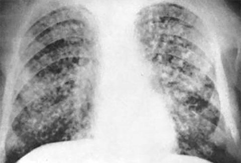 Хроническая форма туберкулеза.