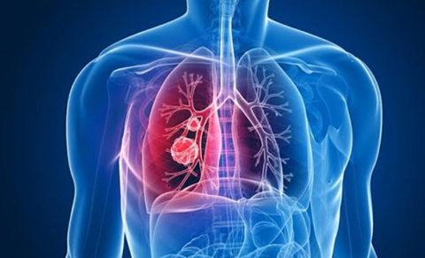 Хронический бронхит – серьезное заболевание, без лечения может привести к серьезным заболеваниям легких.