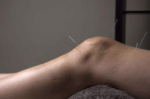 Реабилитация после операции по замене коленного сустава
