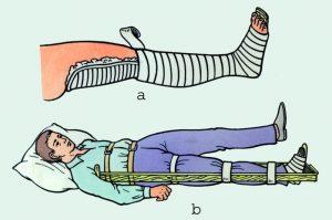 Лангета на коленный сустав