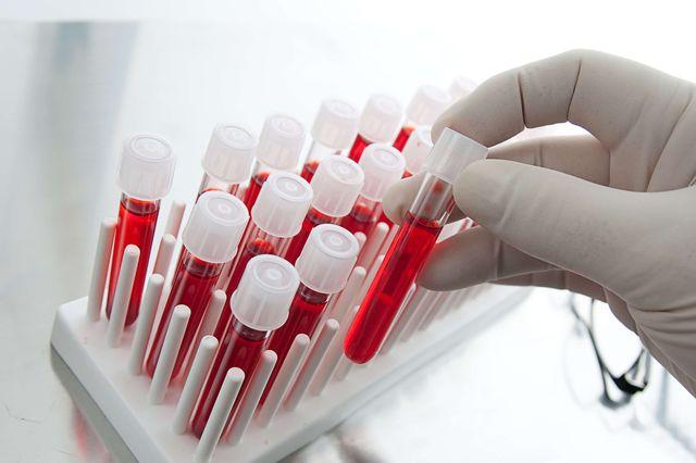 Иммуноглобулины (антитела)