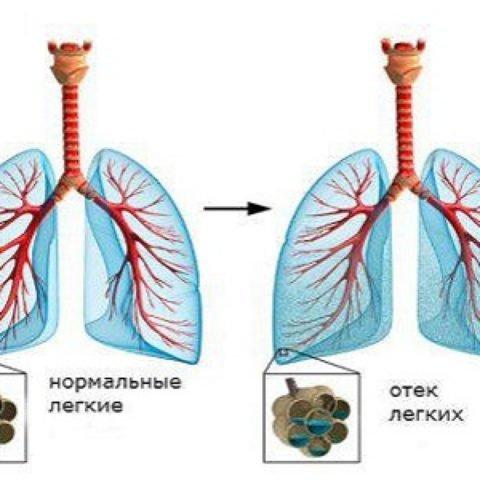 Инфильтрация альвеол