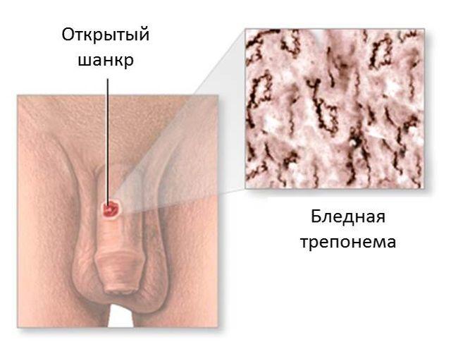 Шанкр при сифилисе