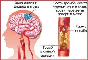 Ишемия в головном мозге: причина
