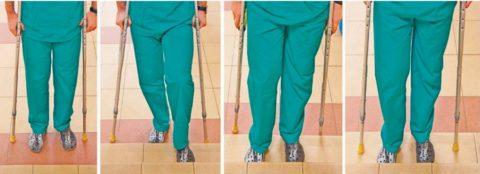 Использование костылей при переломе шейки бедра
