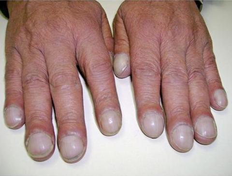 Изменение формы пальцев