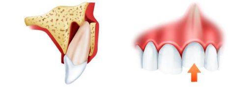 Изменение положения зуба в альвеоле