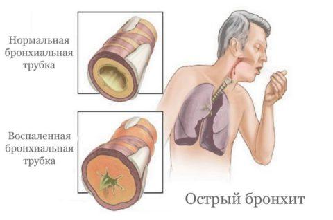 Изменения дыхательных путей при острой форме болезни