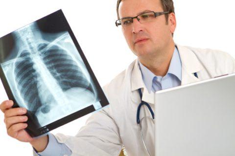Перед исследованием предупредите врача, если вы курите
