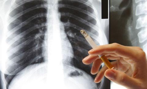 Как почистить лёгкие, если они почернели от никотина?