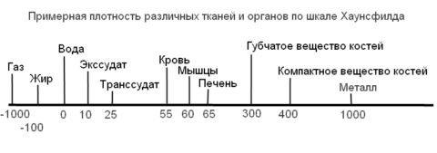 Как меру плотности используют единицы Хаунсфилда