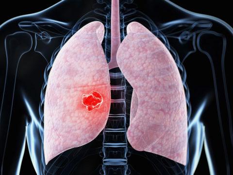 Как проходит диагностика пневмонии.