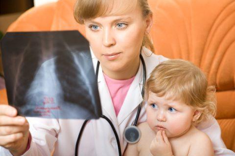 Как протекает пневмония у детей.