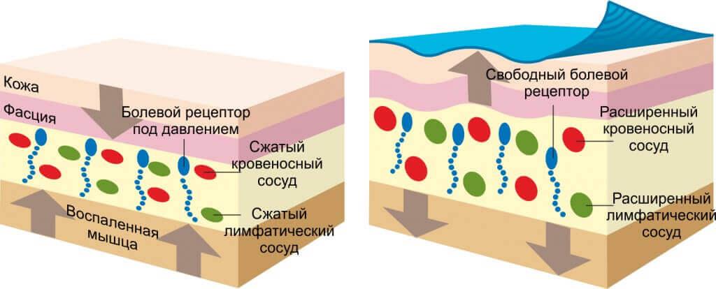 лечебные пластыри кинезио тейп