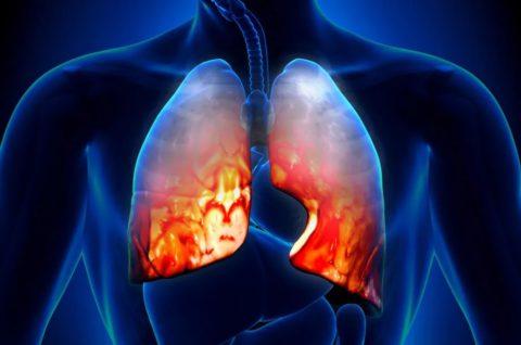 Как развивается атипичная плевропневмония.
