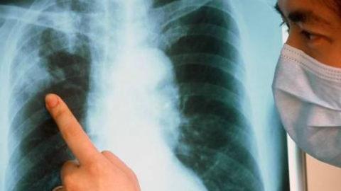 Как развивается туберкулез.
