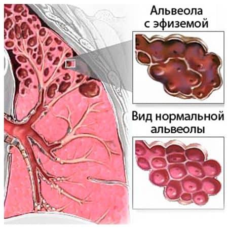 Как выглядит эмфизема легких
