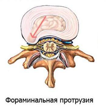 фораминальная протрузия диска l4 l5