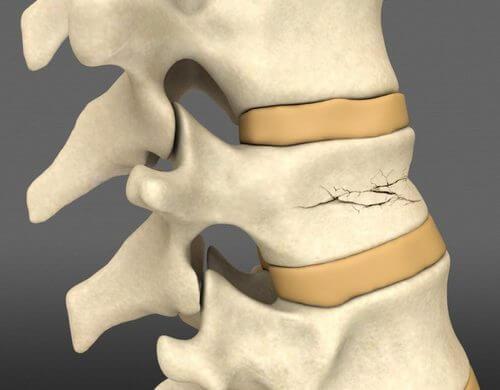 компрессионный перелом позвоночника - причина боли