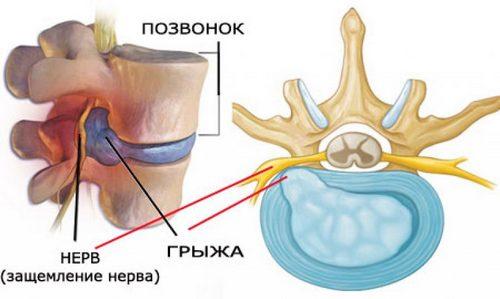 боли в спине в области лопаток и шеи причины