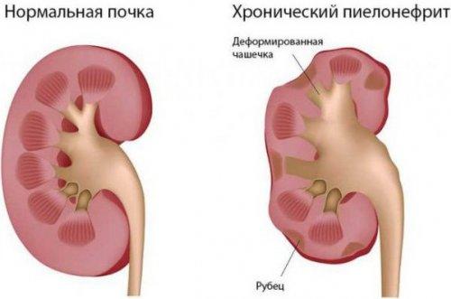 Пиелонефрит и боль в спине