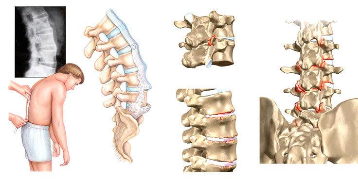 Ревматоидный артрит поясничного отдела