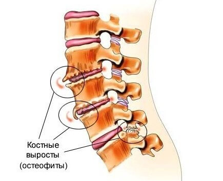остеофит
