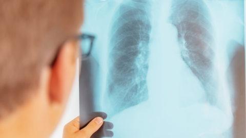 Как выявить туберкулез на ранней стадии