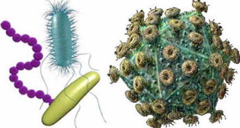 Какие микроорганизмы могут являться возбудителями пневмонии.