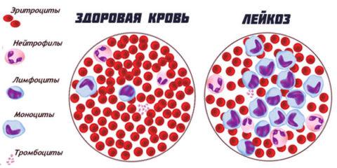 Картина крови при лейкозе